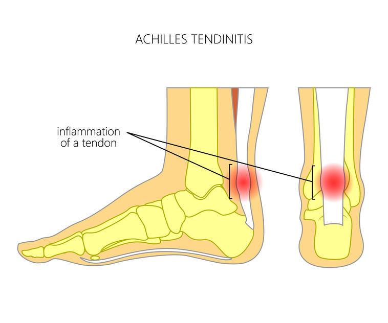 Achillespeesontsteking, hielpijn