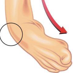 Inversietrauma, eversietrauma (verstuiking of omslaan van de enkel)